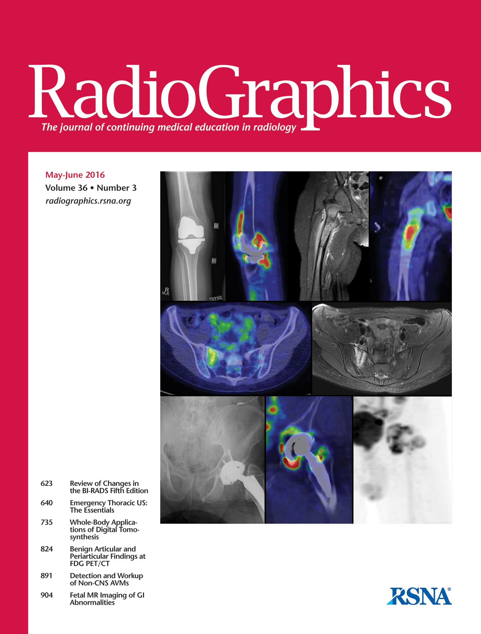 A CT szerepe a súlyos érrendszeri sérülések vizsgálatában tompa hasi-, kismedencei traumákban