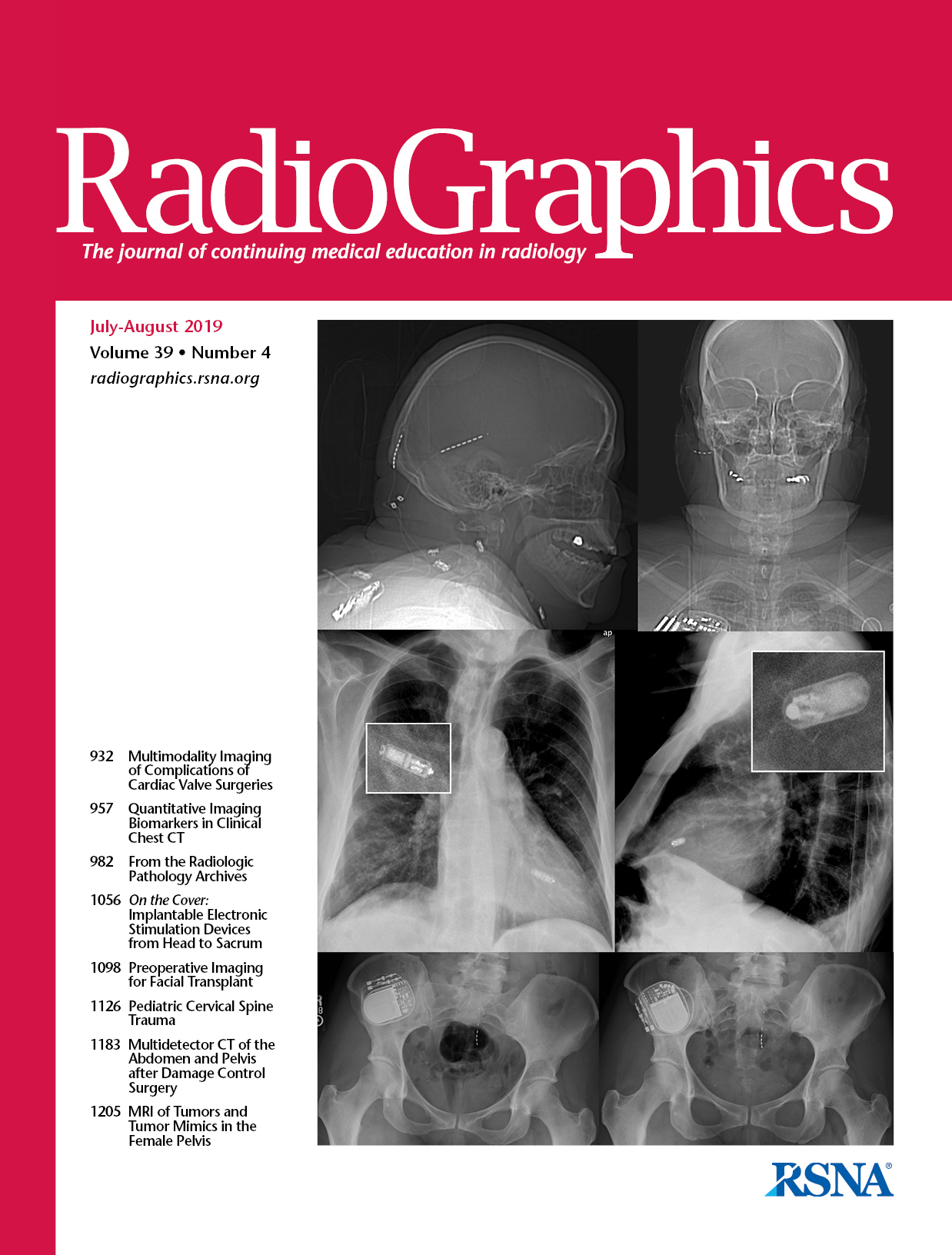 Multidetektoros CT eredmények a has és medence akut traumás eredetű sérüléseinek kontroll alatt tartó műtétei után