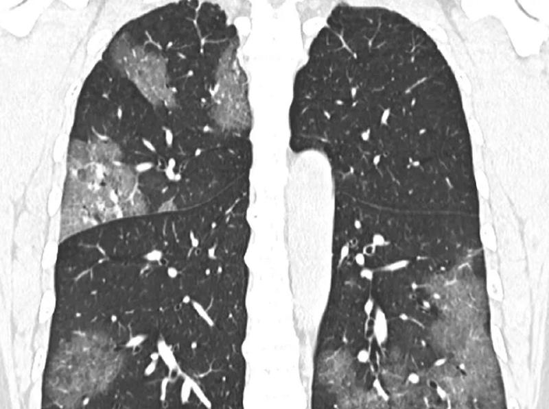 A koronavírus (COVID-19) CT megjelenésének kvantitatív értékelése és klinikai klasszifikációja