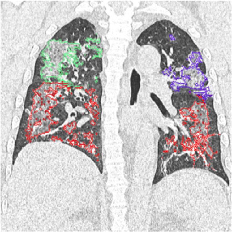 A COVID-19 pneumonia mellkas röntgenen látott kiterjedése CT-vizsgálathoz viszonyítva
