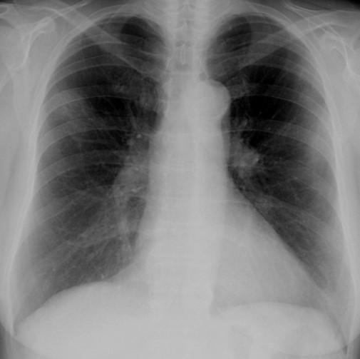COVID-19 pozitív betegek mellkasi röntgenfelvételein látható elváltozások gyakorisága és eloszlása