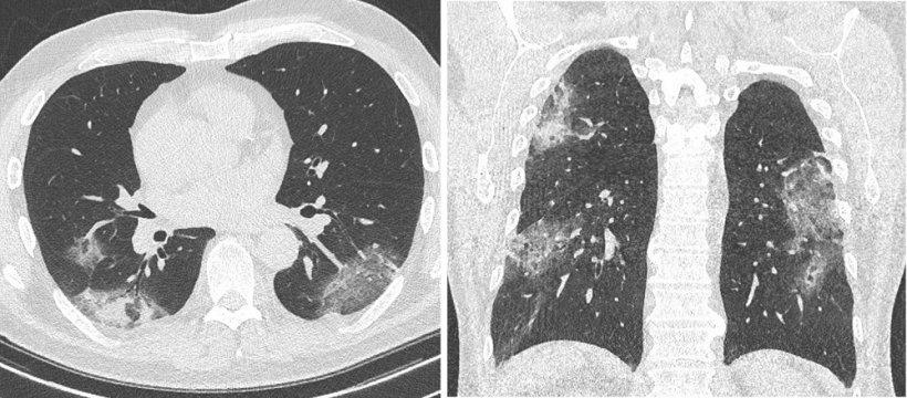 Radiológusok gyakorlati tanácsai COVID-19 betegek ellátásához