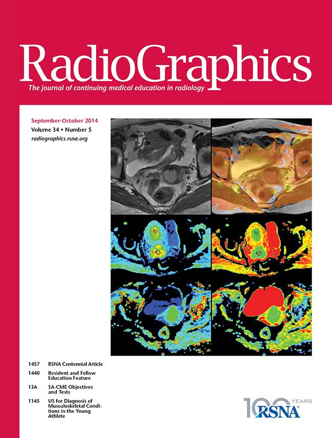 Nekrotizáló pancreatitis: diagnózis, képalkotás és intervenció