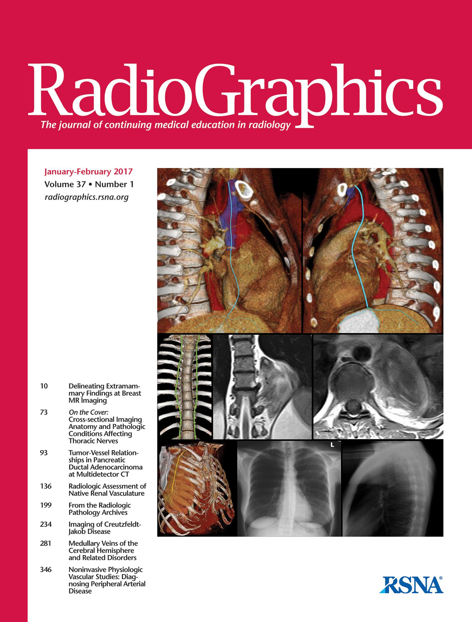 Pulmonalis tuberculosis radiológiája