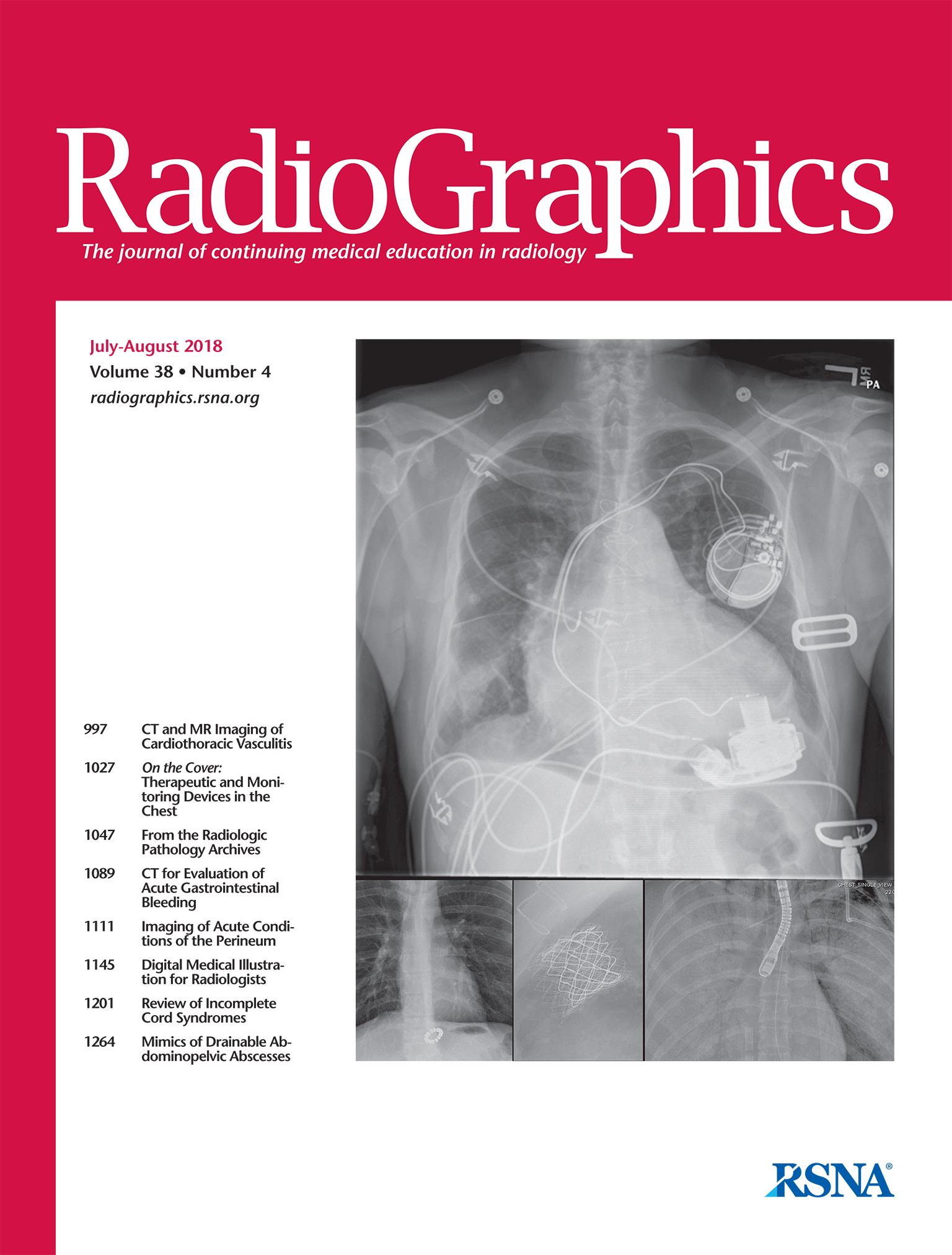 Sarcoidosis tetőtől talpig: amit a radiológusnak tudnia kell