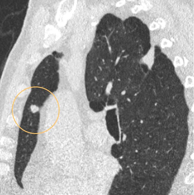 Mesterséges intelligencia a tüdődaganatok hagyományos röntgen diagnosztikájának javításában
