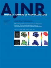 """Elfogultság a neuroradiológiai peer review-ban:  Egy """"kikosarazás"""" hatása a másik """"kikosarazására""""."""