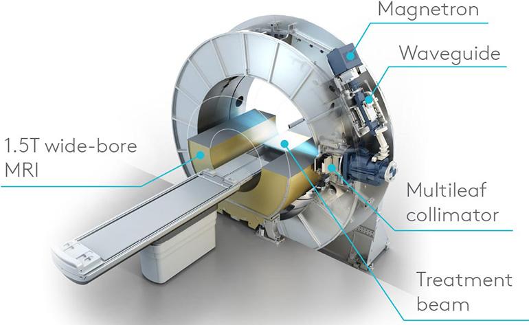 FDA engedélyt kapott az Elekta Unity, a világ első nagy térerejű MRI-lineáris gyorsító eszköze