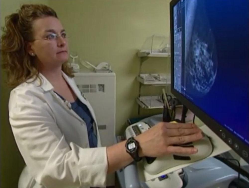 Mammográfia: magas rizikó esetén már 30 éves kortól?