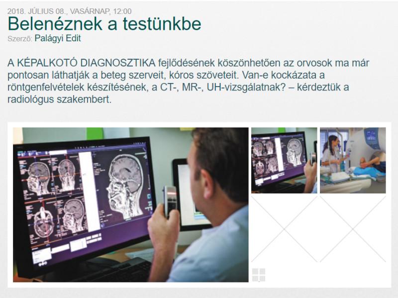 Belenéznek a testünkbe - Hogyan működik a CT?
