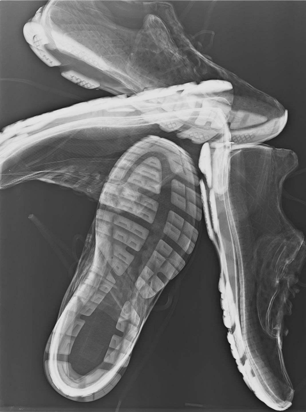 Mozgásszegény radiológusok