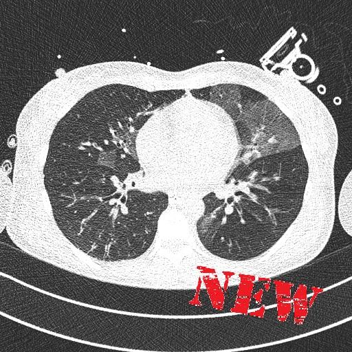 COVID ellátóhelyek CT-vizsgálatai
