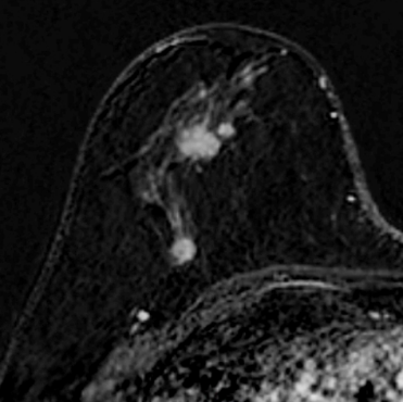 Emlő-MR-vizsgálatok leletezési protokollja a BIRADS lexikon alapján