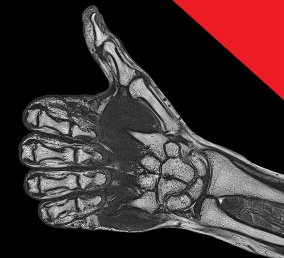 AJÁNLÁS - Sürgősségi végtagi musculoskeletalis MR indikációk gyermek és felnőtt korban