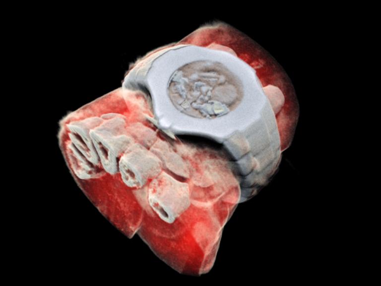 Elképesztő felvétel: kifejlesztették a színes röntgent