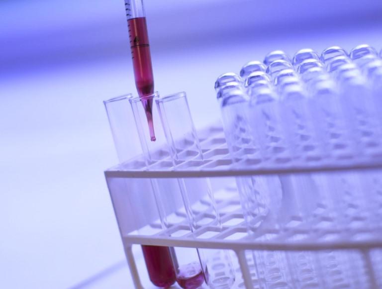 Korai rákdiagnosztikai kutatások egyik centruma az SZTE