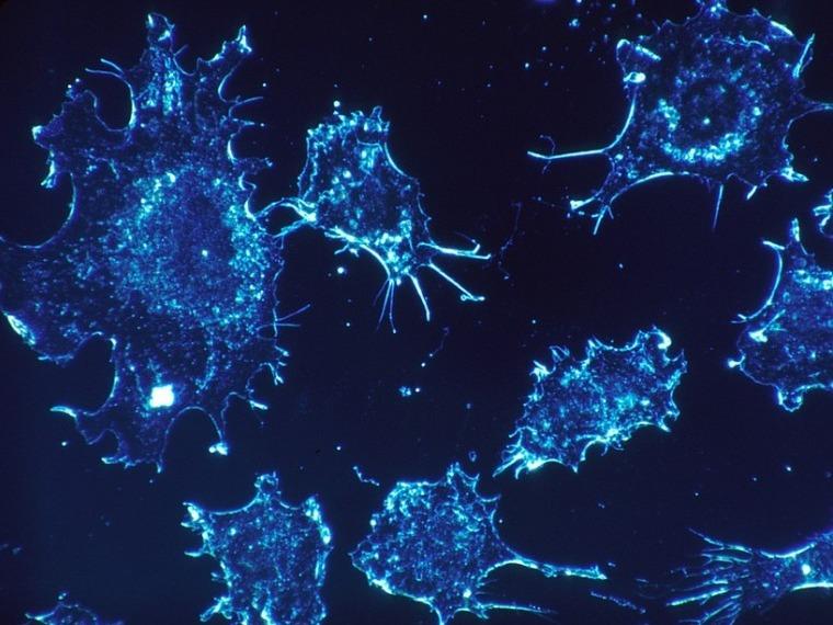 Az onkológus ma már hosszú évekig gondozza a betegeit