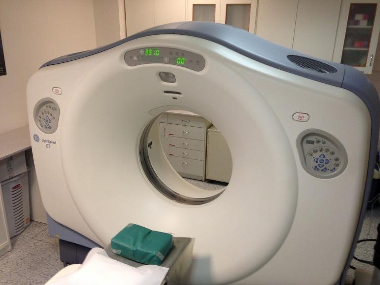 A CT-vizsgálatok fokozzák a daganatkockázatot