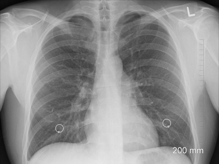 Új módszerrel szűrik a szegedi radiológián a tüdőrákot