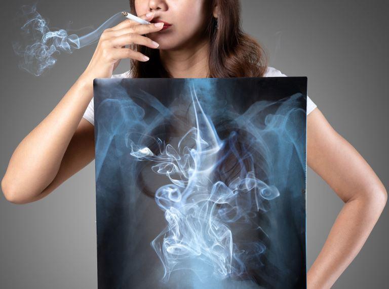 A dohányzás káros hatása a tüdőre és a fogakra